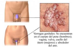 tratamiento-de-verrugas-genitales