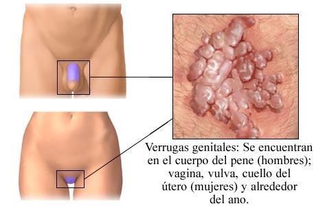 barbert vagina samleie med mensen