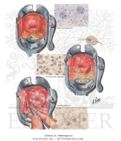 Infecciones vaginales (vaginitis) | | Ginecologia y Obstetricia en ...