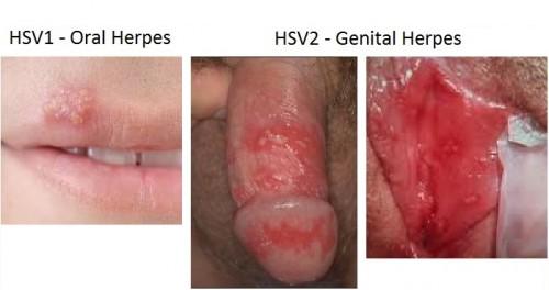 genital herpes sex i fredericia